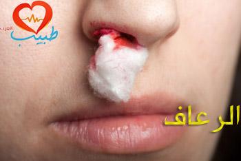 Photo of الرعاف – النزيف الأنفي (epistaxis): أنواعه وأسبابه وعلاجه