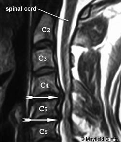 PE-HerniatedCervical_Figure2