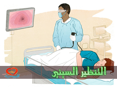 Photo of التنظير السيني Sigmoidoscopy