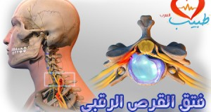 cervical-herniated-disc-450
