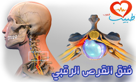 Photo of فتق القرص الرقبي cervical disc herniation