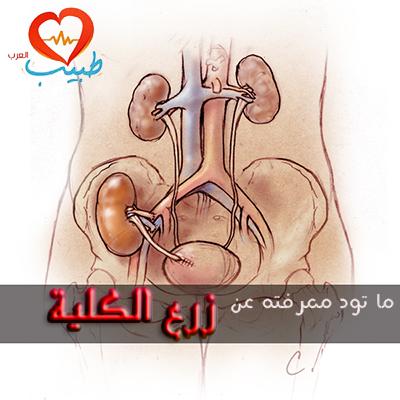 زرع الكلية ، زراعة الكلى Kidney Transplantaion