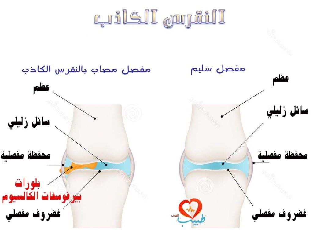 طبيب عرب مفاصل نقرس كاذب