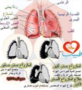 طبيب ع تنفسية استرواح  2