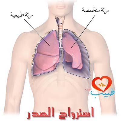 استرواح الصدر أو الريح الصدرية (pneumothorax)