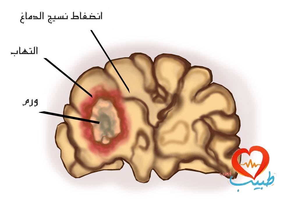 سرطان الدماغ Brain Cancer علاج سرطان الدماغ اعراض سرطان الدماغ