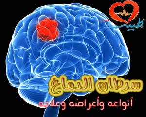 Photo of سرطان الدماغ Brain Cancer