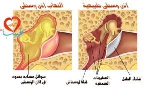 طبيب ع اذن التهاب مصلي 1