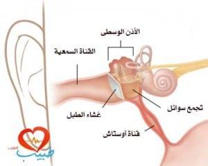 التهاب الأذن الوسطى المصلي وجود السائل في الأذن الوسطى