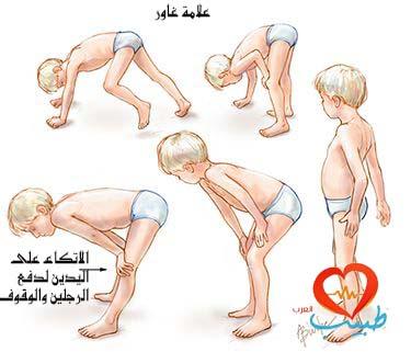 Photo of الحثل العضلي الطفولي Pediatric Muscular Dystrophies