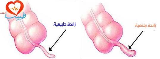 طبيب ع داخلية التهاب زائدة