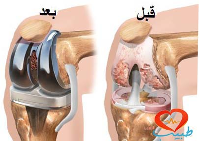 Photo of عملية تبديل المفصل تزيد خطر النوبات القلبية
