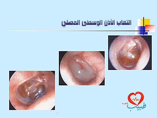 Photo of التهاب الأذن الوسطى المصلي ( وجود السائل في الأذن الوسطى )