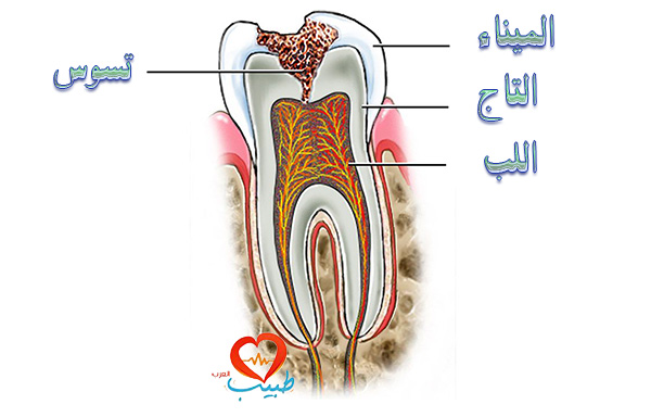 طبيب ع اسنان تسوس2
