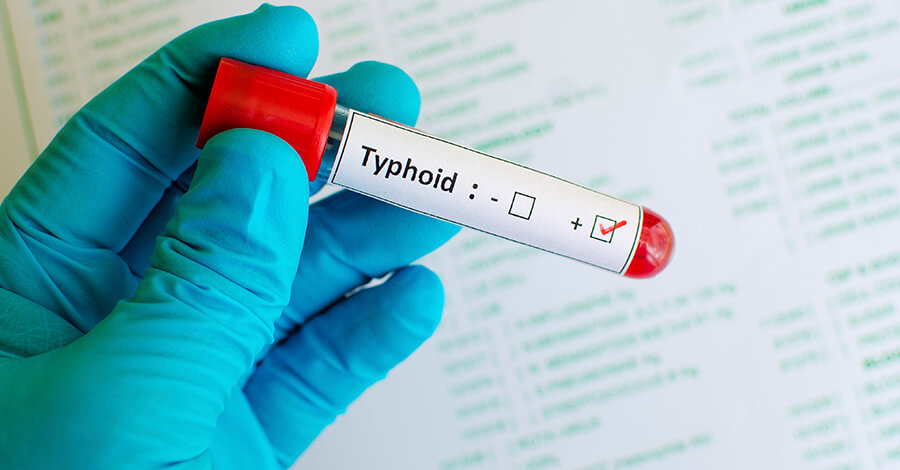 Photo of التيفود ( حمى التيفوئيد) Typhoid Fever