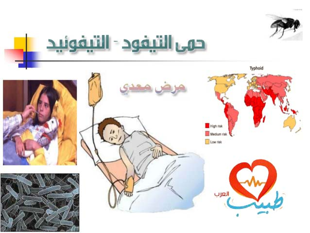 التيفوئيد ( حمى التيفود ) Typhoid Fever