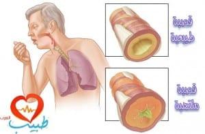 التهاب قصبات