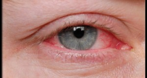 eye_diseases_and_cond_s9_eye_allergies