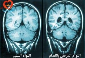 طبيب ع عصبية فصام22 -