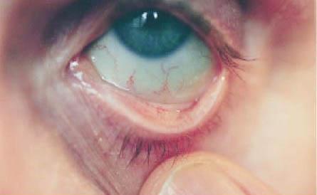 Photo of ما هي أعراض نقص الحديد في الجسم ؟