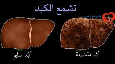 Photo of ما هي أسباب تشمع الكبد ؟