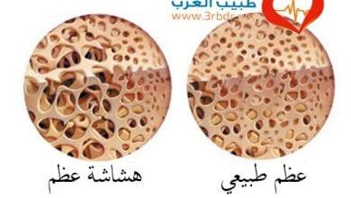 Photo of ما هي أدوية هشاشة العظام؟