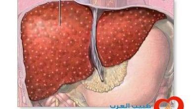 Photo of ثماني خطوات لحماية الكبد المصاب بالتهاب الكبد C