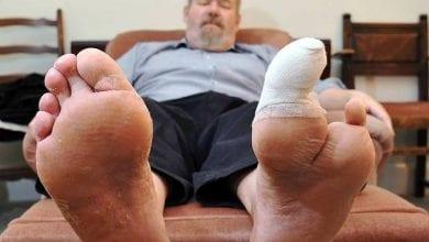 Photo of بتر القدمين ومرض السكري: كيف تحمي قدميك من البتر؟
