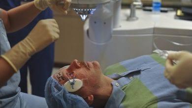 Photo of كيف تتم عملية الليزك للعيون ؟