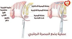 بضع المصرة الجانبي Lateral sphincterotomy