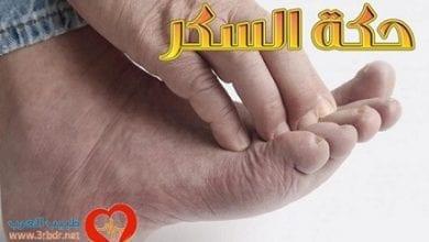 Photo of حكة السكر : الأسباب والأعراض والعلاج
