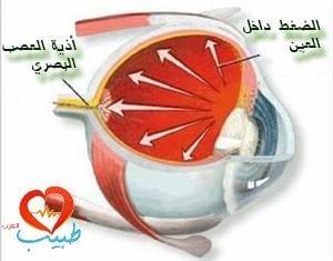 ما أسباب ارتفاع ضغط العين؟
