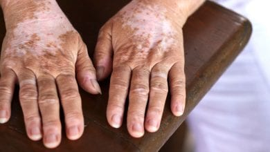 Photo of علاج البهاق