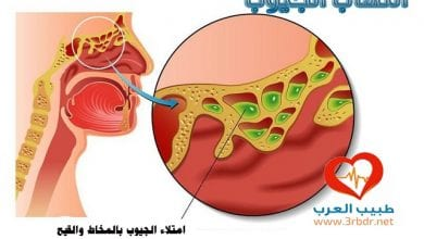 Photo of أعراض وعلامات التهاب الجيوب الأنفية