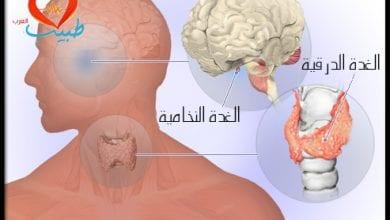 Photo of ما هي أعراض زيادة نشاط الغدة الدرقية؟