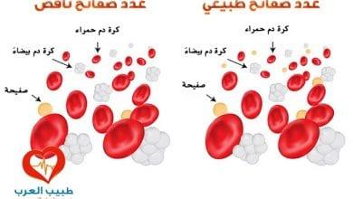 نقص صفائح الدم