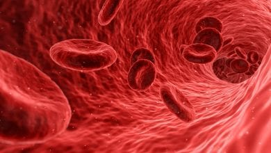 علاج متلازمة انحلال الدم اليوريمي