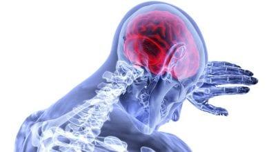 Photo of العلاج البديل للألم المزمن