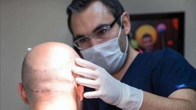 Photo of نظرة على الأمور التي تحدد تكلفة عملية زراعة الشعر في تركيا