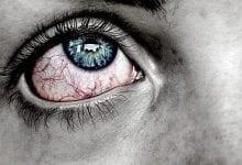 ضغط العين الطبيعي