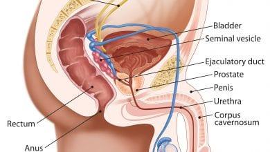 أعراض سرطان البروستاتا المتقدم