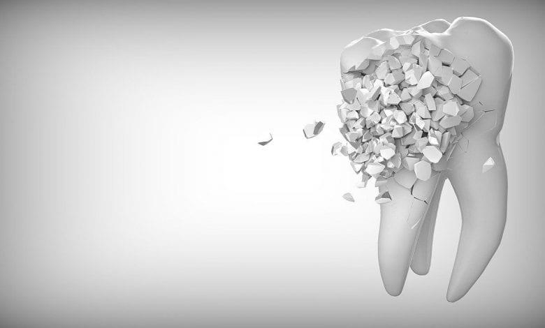 ألم الأسنان بعد التلبيس
