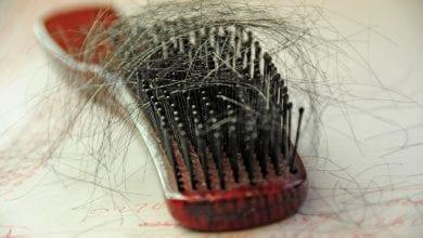 ما التحاليل لتساقط الشعر؟