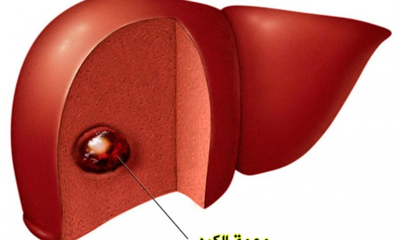 وحمة الكبد