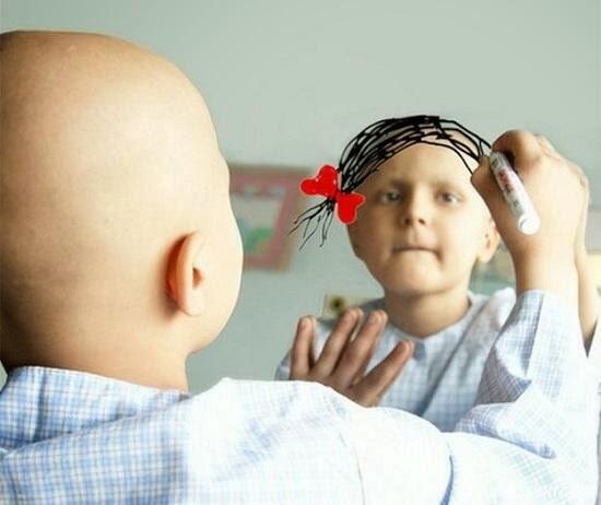 طفلة مصابة بالسرطان-ديوروجيسيك