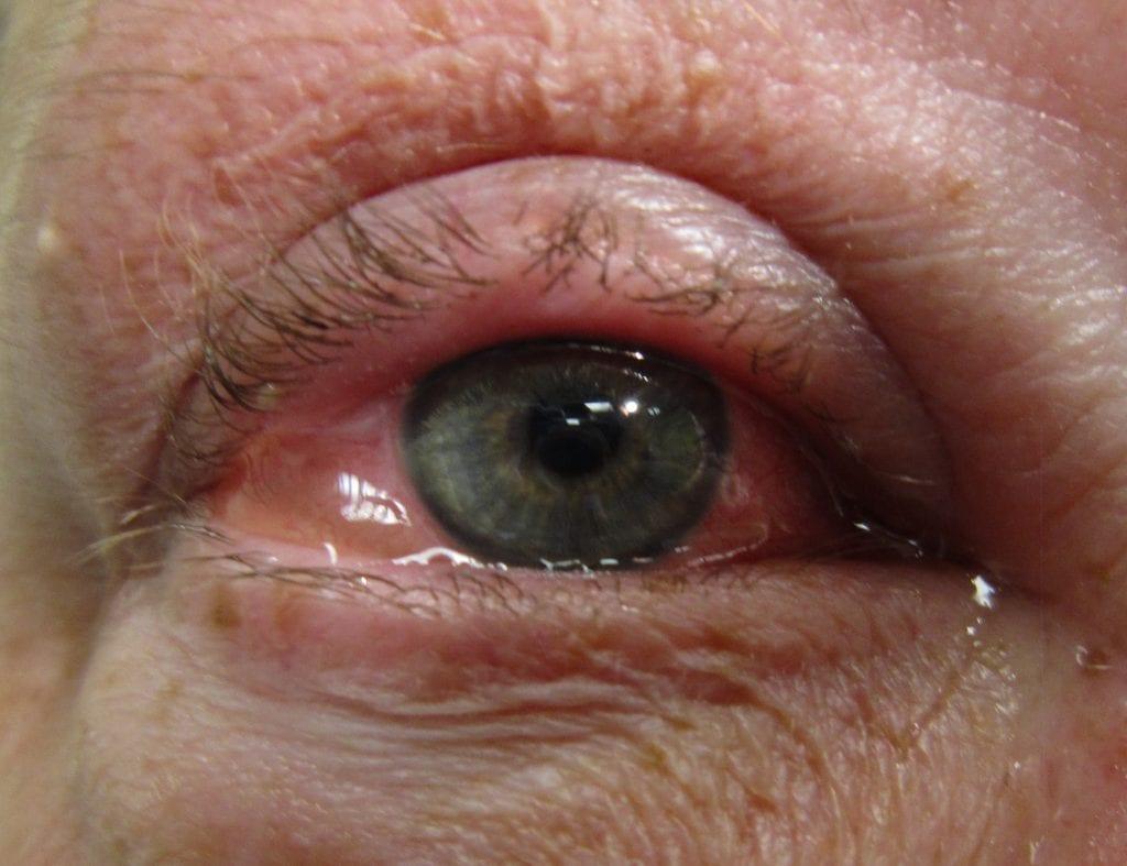 احمرار العين- أضرار قطرة بريزولين