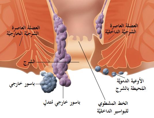 البواسير-مرهم فاكتو-طبيب العرب