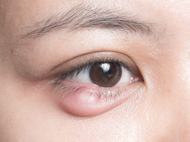 الكيس الدهني في العين عند الأطفال