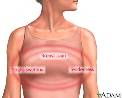كتلة في الثدي مؤلمة أثناء الرضاعة
