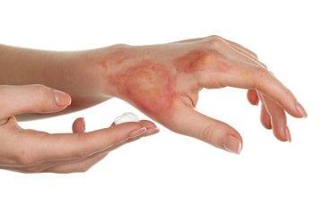 مراحل شفاء الجلد المحروق